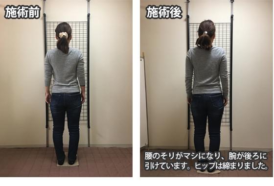 枚方市 N.Aさん 31歳 看護師