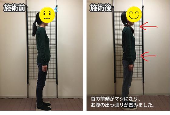 枚方市 N.Cさん 41歳 医療事務 施術翌月妊娠されました!