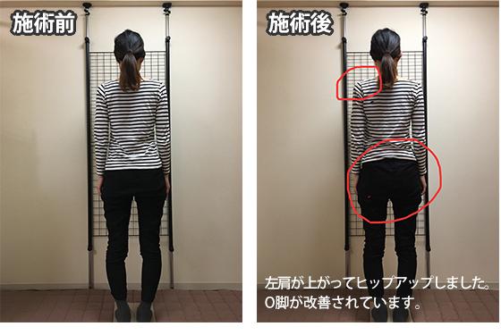 枚方市 Y.Nさん 28歳 会社員 施術翌月妊娠されました!